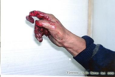 Lesiones causadas por el accidente