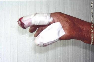 Dedos luego de la atención médica